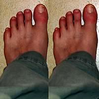 2-left-feet-1.jpg